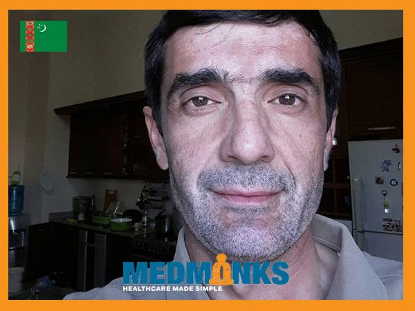 dovran-turkmenistan-finally-gets-rid-of-vitiligo