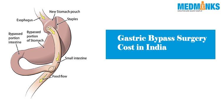 معالجه جراحی - هزینه - هندوستان