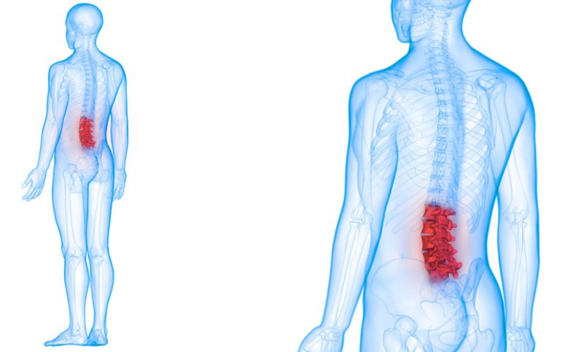 best-lumbar-spine-surgeons-delhi-ncr-india