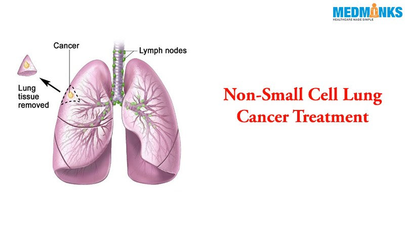 non-small-cell-lung-cancer-treatment