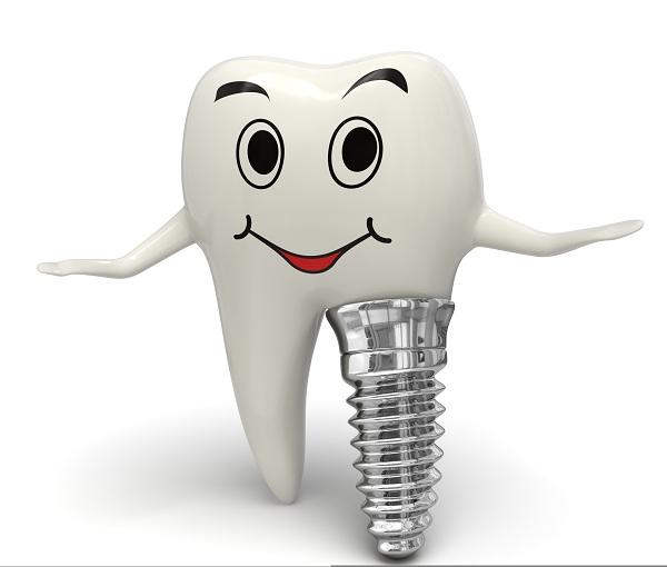 همه در 6-دندان-ایمپلنت