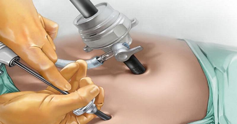 cirugía de próstata en laparoscopia costo