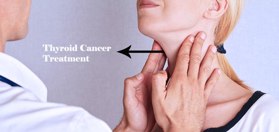 درمان سرطان تیروئید