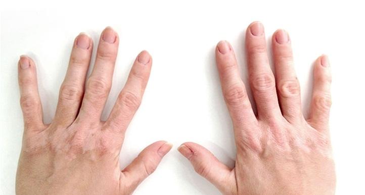 What Is Vitiligo Treatment Cost In India Best Vitiligo Doctors Hospitals Medmonks